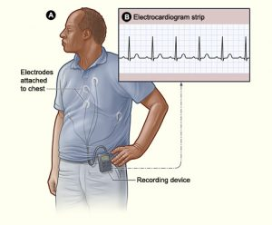 How a Holter Monitor is placed onto the body.